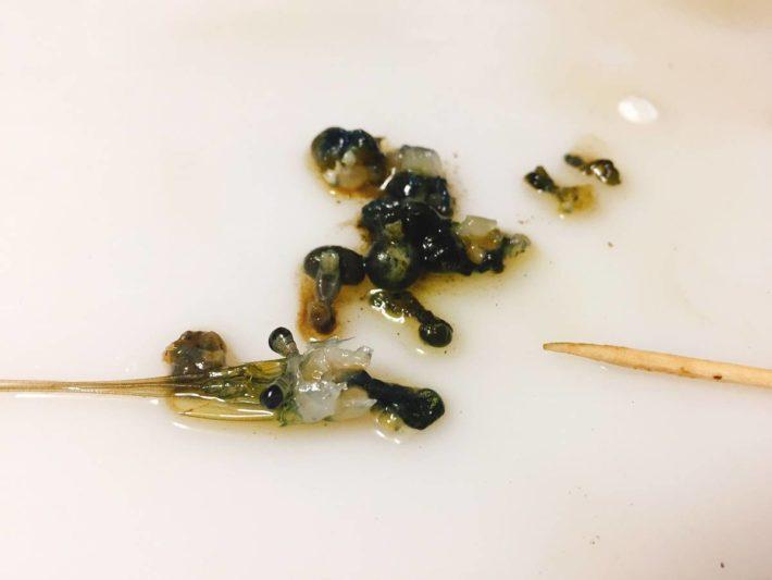 テナガエビの胃袋